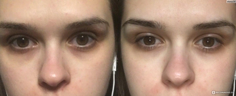 Почему у ребенка могут появляться темные круги под глазами?