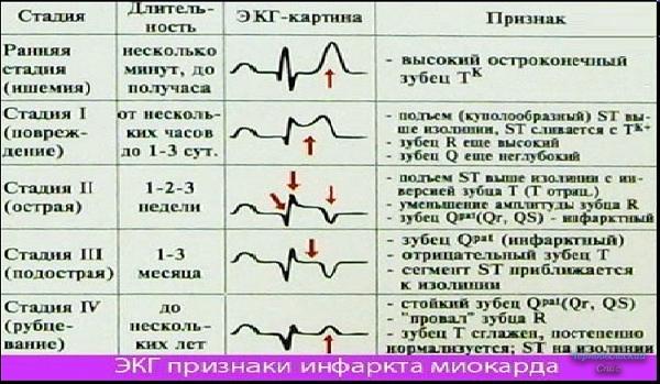 Экг ребенку: расшифровка, норма в таблице, нарушения работы сердца на кардиограмме | диагностика | vpolozhenii.com