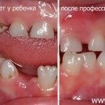 Почему нужно избавляться от белого пятна на зубе у ребенка