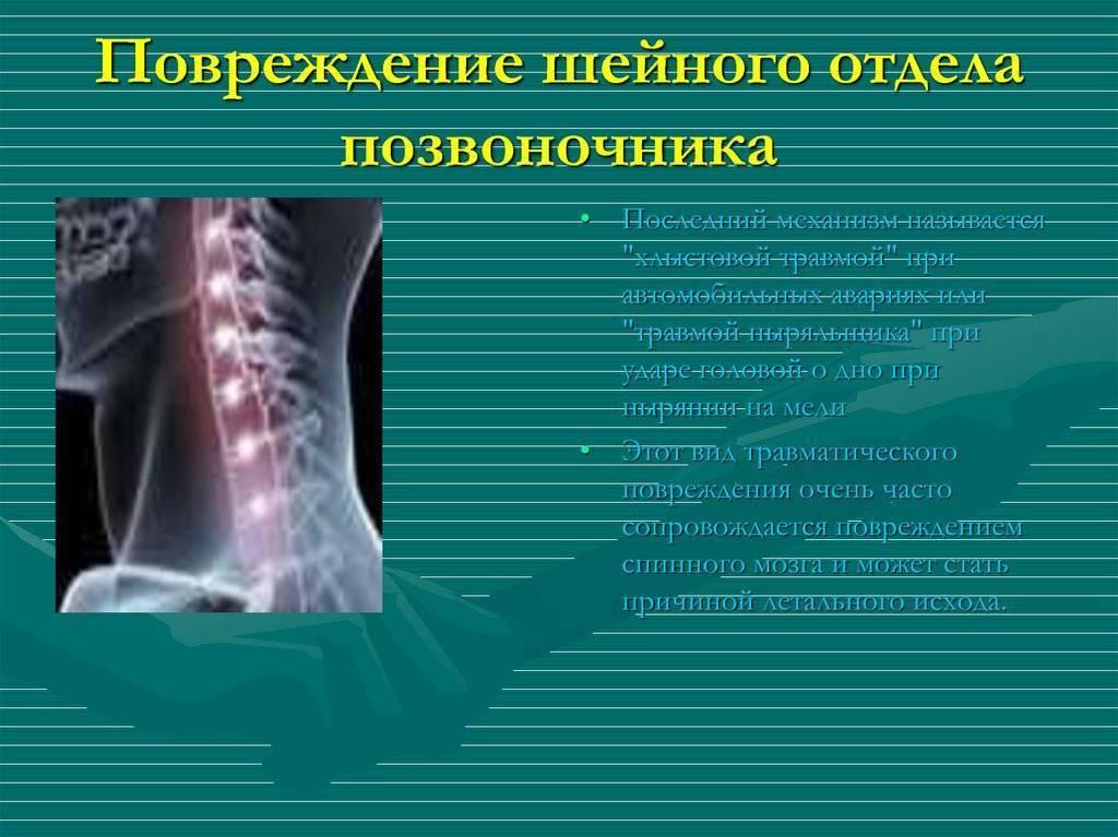 Нестабильность шейного отдела позвоночника у детей симптомы и лечение