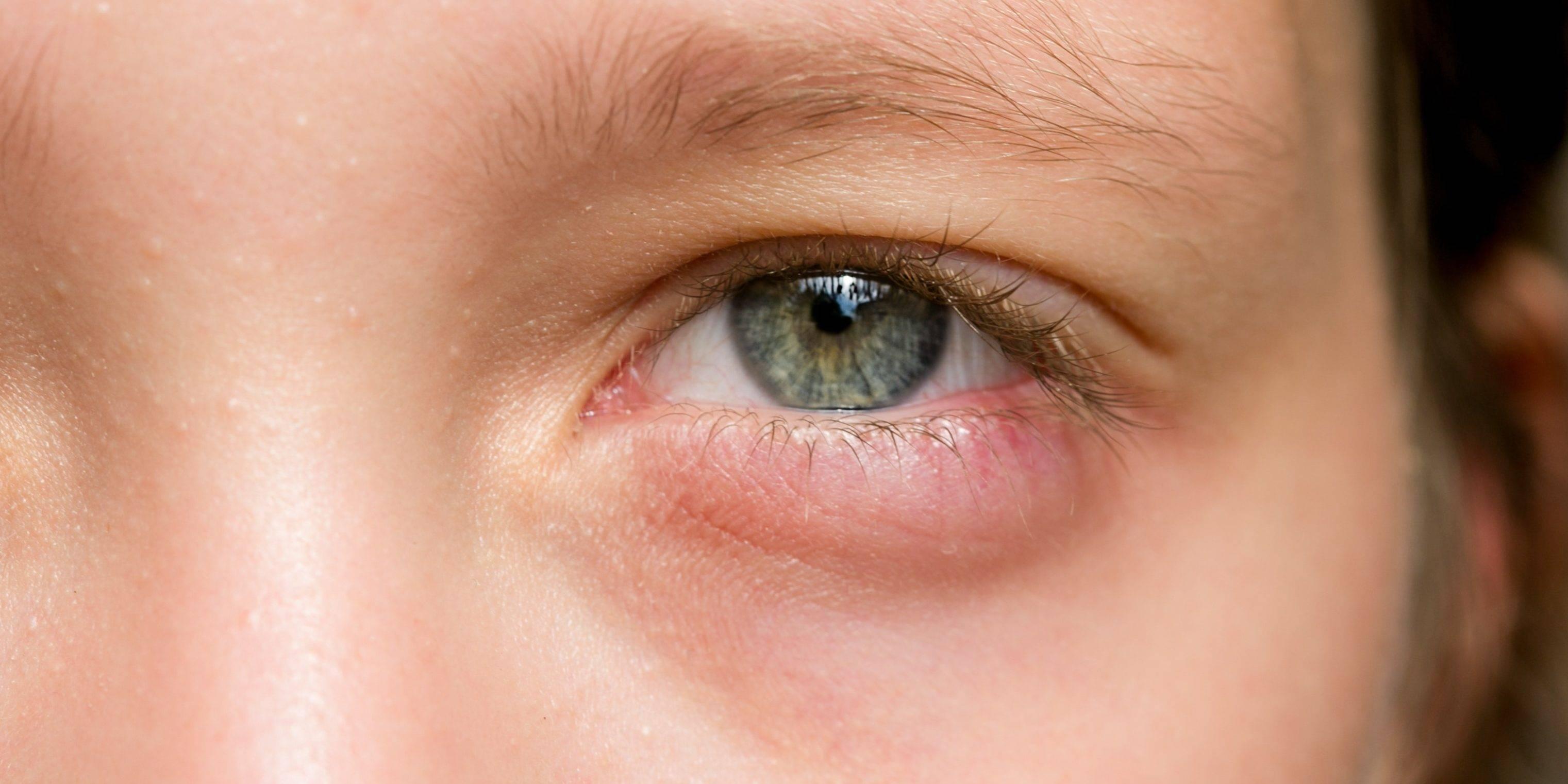 """Шишка на веке глаза: виды, причины, лечение - """"здоровое око"""""""