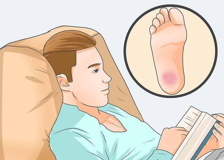 Болит пятка у ребенка, если на нее наступать — причины и способы лечения