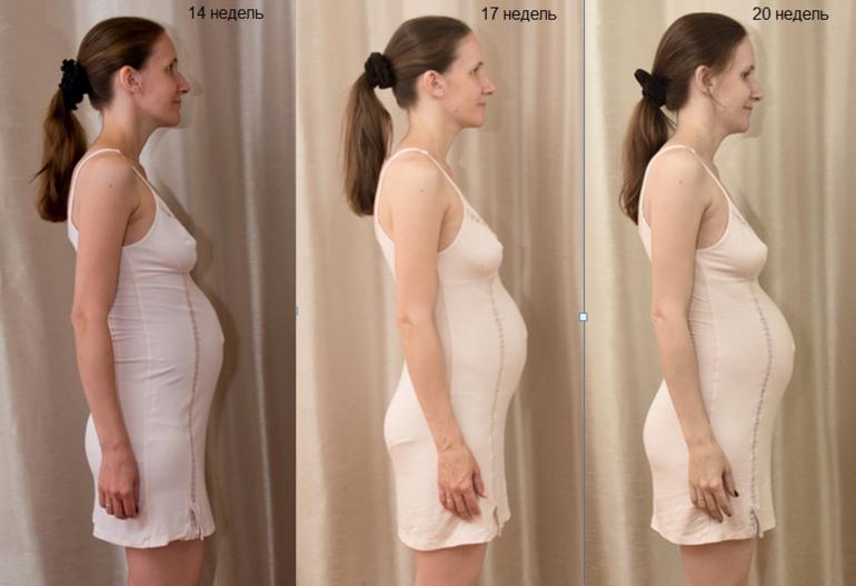 Грудь при беременности. фото, изменение, увеличение, боли, если сдулась, уменьшилась, чешется, набухает, чувствительность