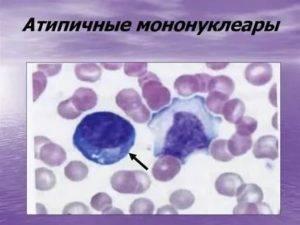 Мононуклеары в анализе крови ребенка: норма и причины появления атипичных клеток. атипичные мононуклеары в крови: норма у детей. когда необходимо знать показатель