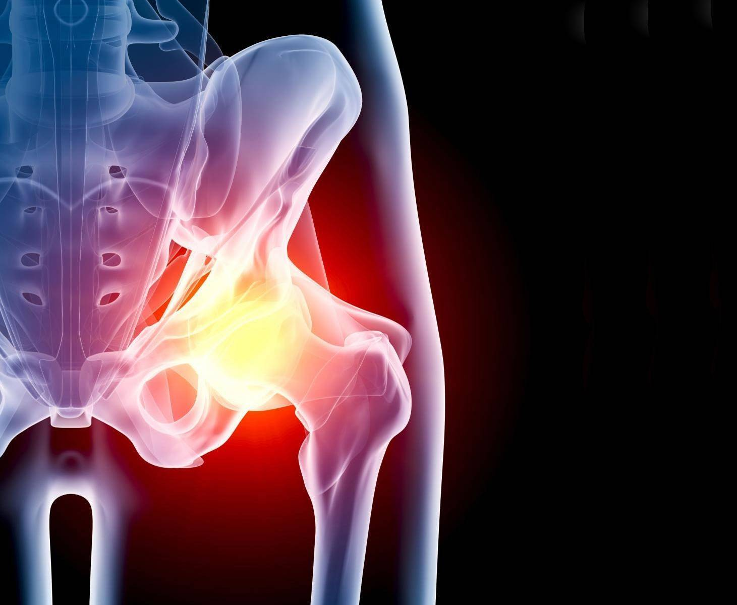 Полная характеристика артрита тазобедренного сустава: виды, симптомы, лечение