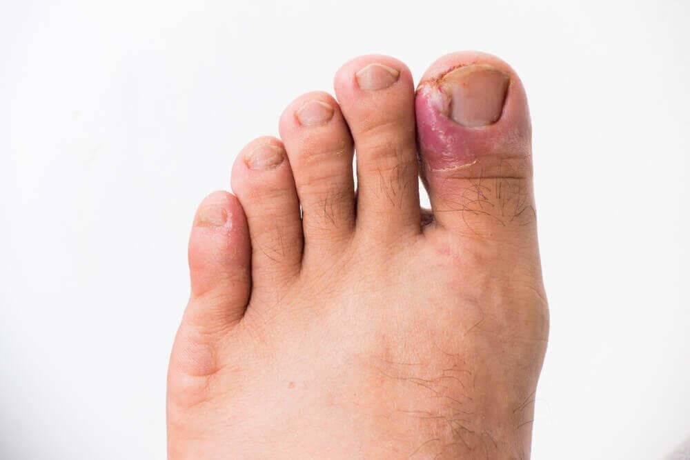 ᐉ воспаление вокруг пальца на руке без гноя. ванночки, помогающие избавиться от нарыва возле ногтя на пальце руки или ноги. причины появления нарыва ➡ klass511.ru
