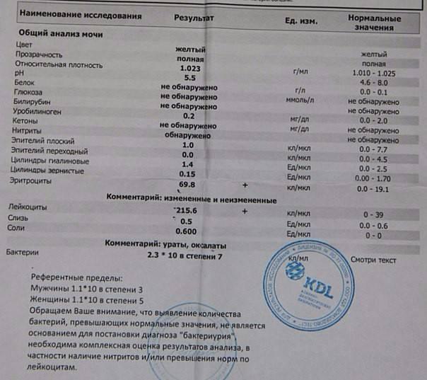 Бактерии в моче у ребенка, бактериурия / mama66.ru