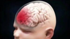 Незрелость коры головного мозга ребенка