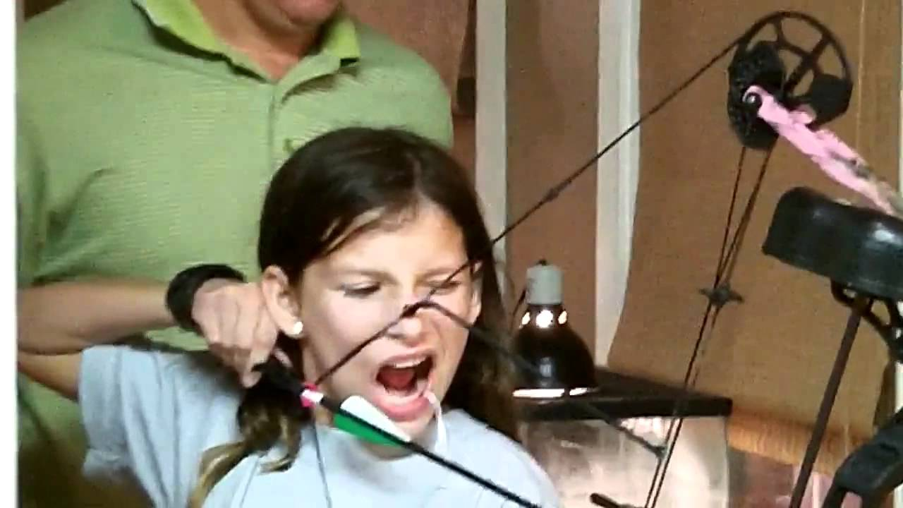 Удаление молочных зубов у детей: показания, последствия, больно ли это делать?   spacream.ru
