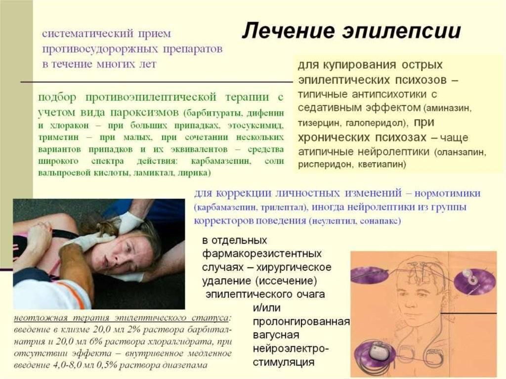 Роландическая эпилепсия — что это такое и как лечить?