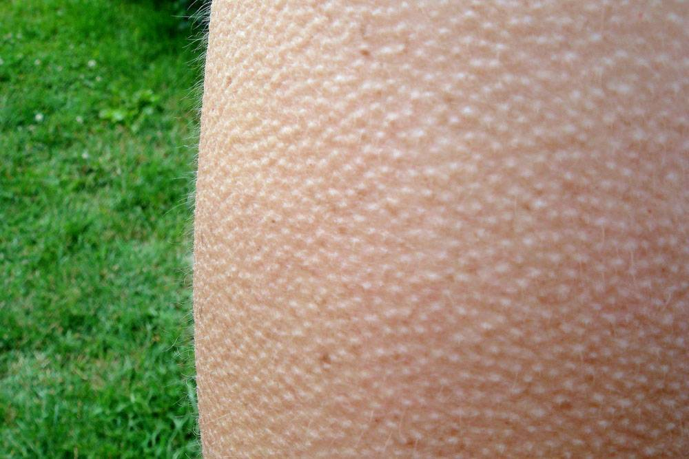 Сыпь на животе гусиная кожа