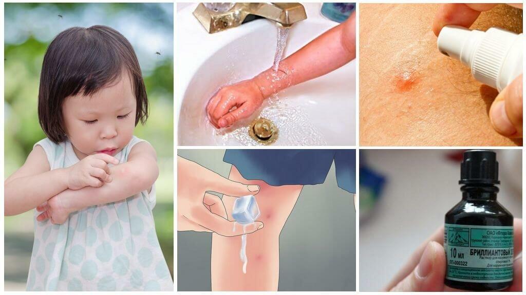 Народные средства от укусов комаров для детей - чем обрабатывать и мазать кожу в домашних условиях?