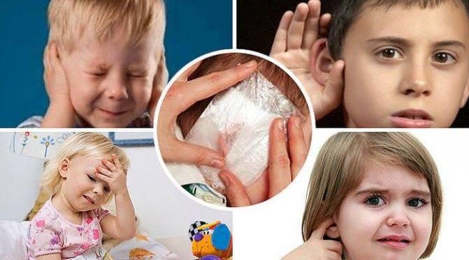 Постановка согревающего компресса на ухо ребенку алгоритм: что делать, как лечить - здоровьедетей