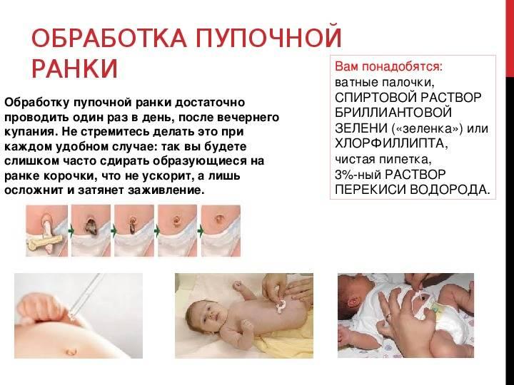 Обработка пупочной ранки новорожденного: как, когда и чем следует обрабатывать незаживший пупок малыша