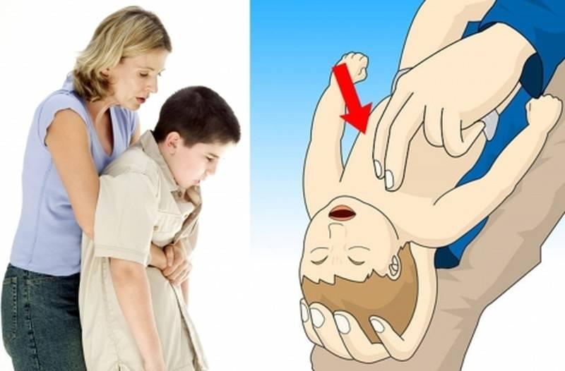 Ребенок проглотил монету, рубль, копейку: что делать, симптомы проблемы