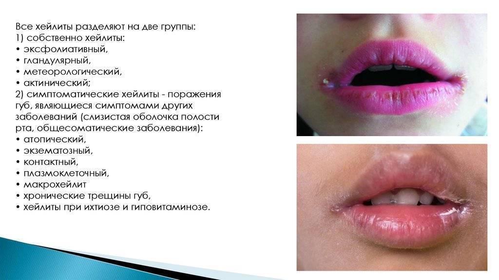 У ребенка опухла верхняя губа