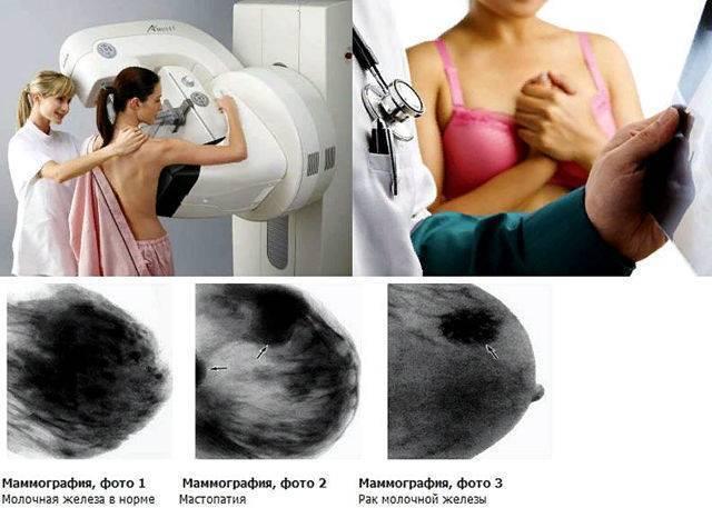 Флюорография мужа при беременности зачем назначают