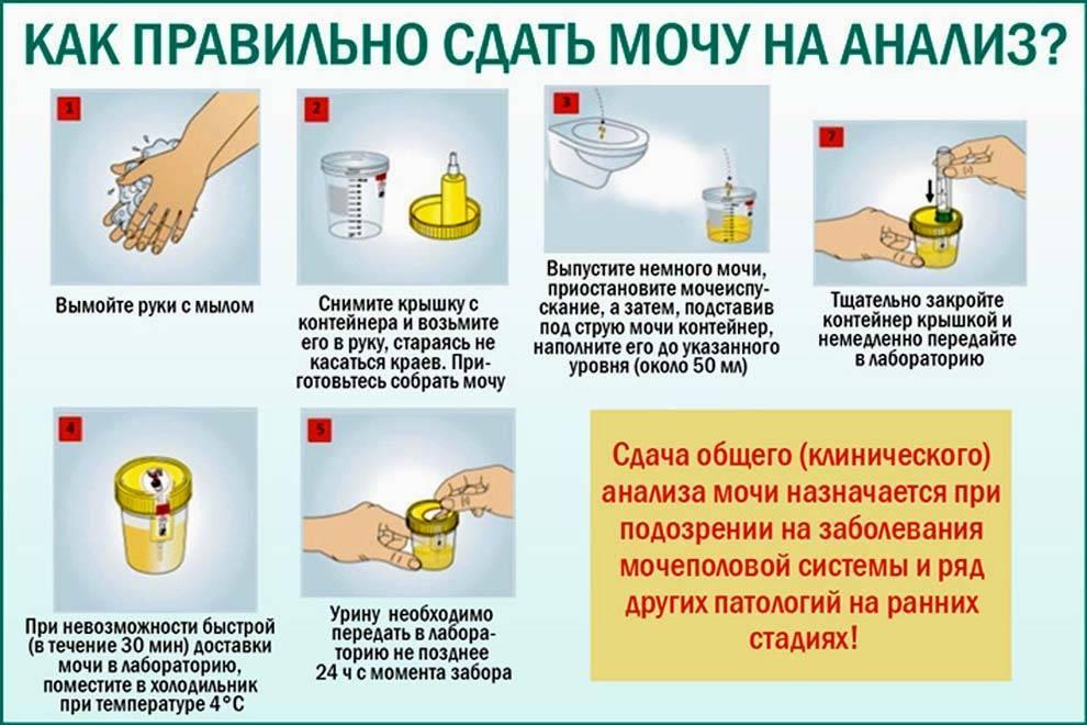 Как правильно собирать мочу при беременности