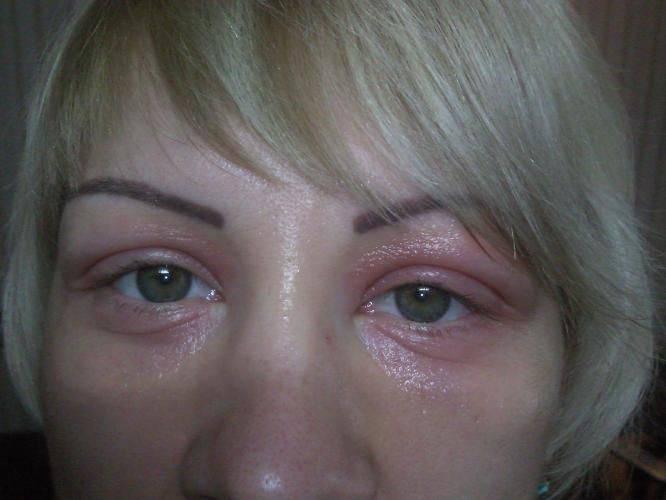 Аллергия под глазами у ребенка - причины и лечение недуга