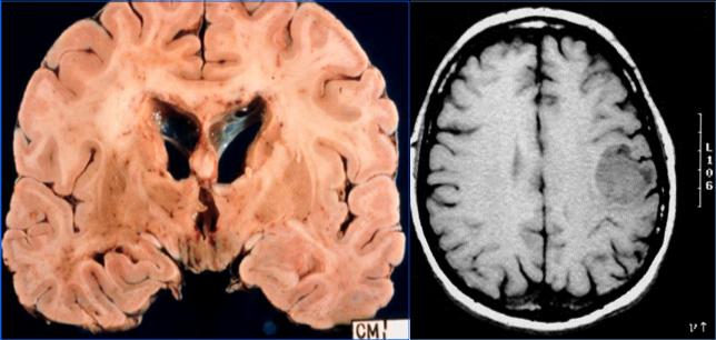 Сколько живут с опухолью головного мозга