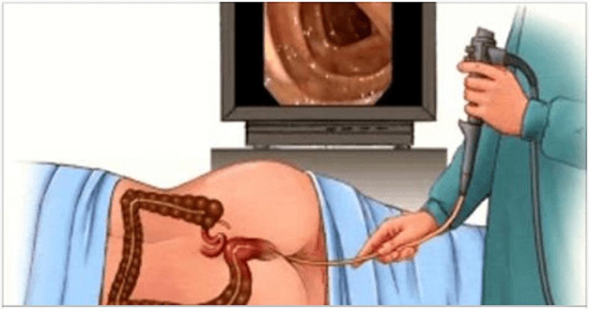 Можно ли делать фгдс при беременности и на каком сроке?