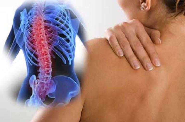 Опасные последствия шейного остеохондроза