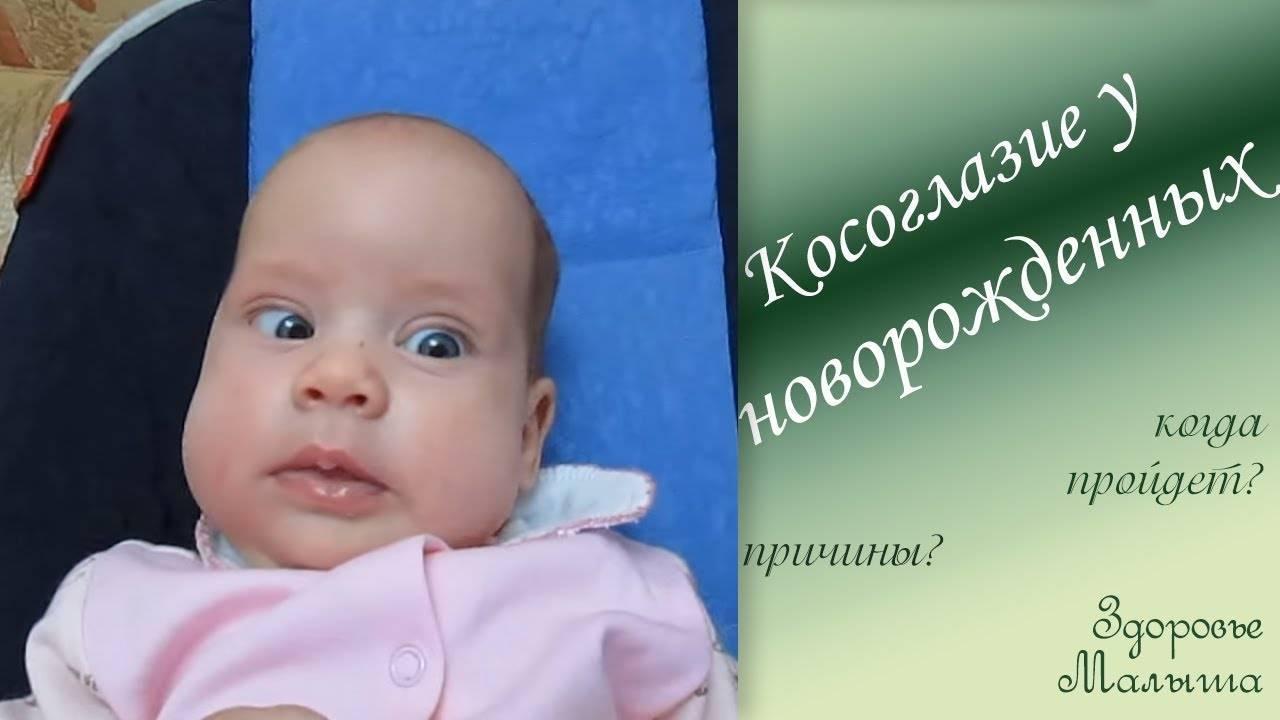 Косоглазие у новорожденных: причины, когда проходит?