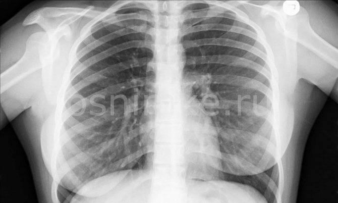 Рентген при грудном вскармливании: можно ли делать кормящей матери и разрешается ли кормить ребенка грудью после обследования