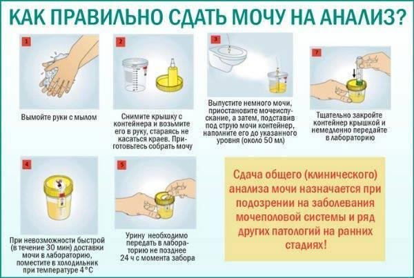 Сдаем анализы. как правильно сдавать анализы крови, мочи и кала