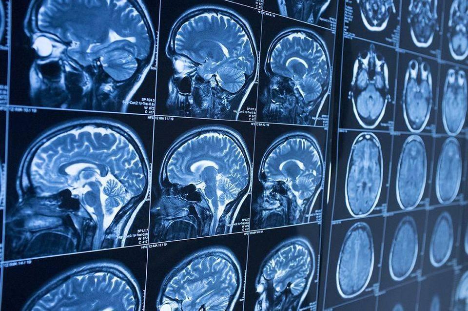 Как делают мрт головного мозга детям