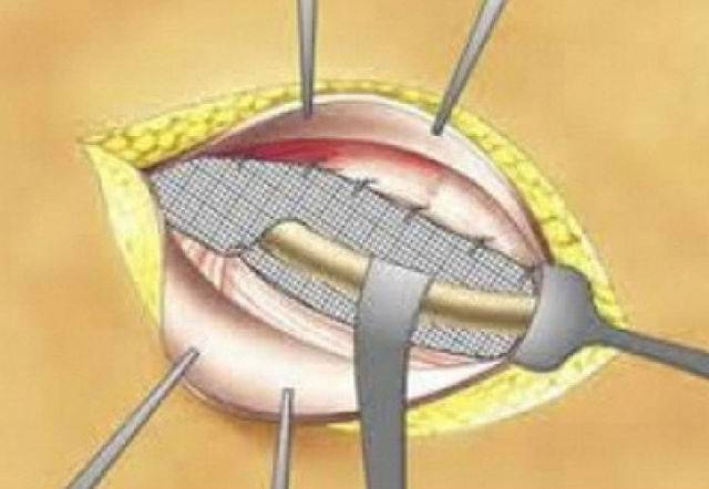 Симптомы и лечение пупочной грыжи у детей без операции и с помощью хирургического удаления - все о суставах