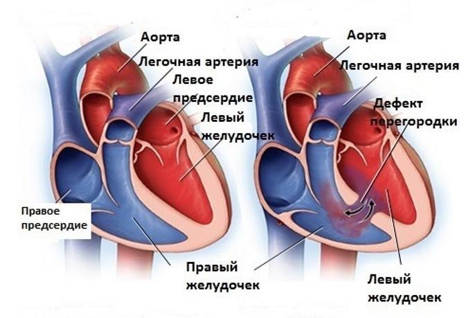 Сердечные пороки у детей и особенности их течения исходя из формы