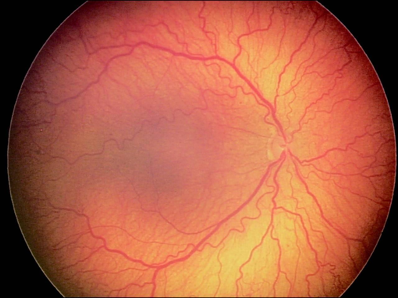Ангиопатия сетчатки глаза у ребенка что это
