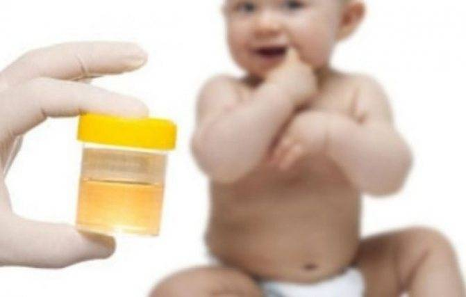 Комаровский: у ребенка белок в моче