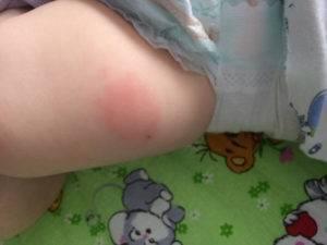 У ребенка болит нога после акдс, от прививки он хромает и не может встать - что делать? | konstruktor-diety.ru