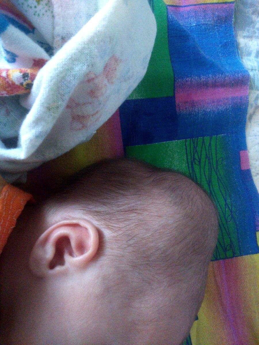 Кефалогематома на голове у новорожденного: почему она появляется и как ее лечить