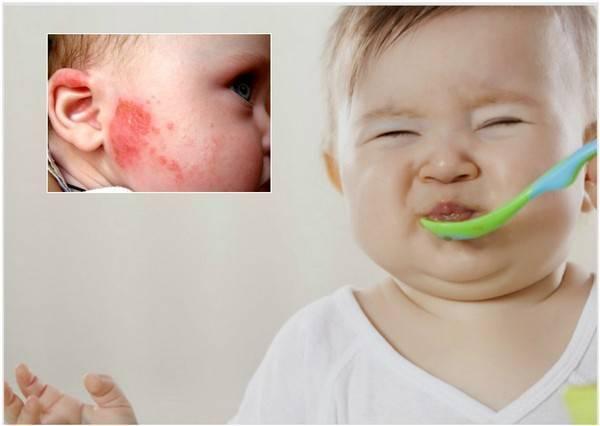 Пищевая аллергия у ребенка, аллергия на еду – симптомы (температура, сыпь при аллерги), лечение. диета при пищевой аллергии у детейи