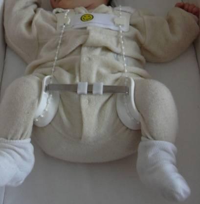 Проверка суставов у новорожденных видео