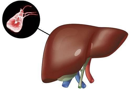 Лямблиоз: признаки и симптомы лямблий в желчном пузыре, диагностика и лечение