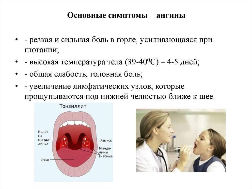 Вирусная ангина у детей: симптомы и лечение, фото горла при тонзиллите | заболевания | vpolozhenii.com