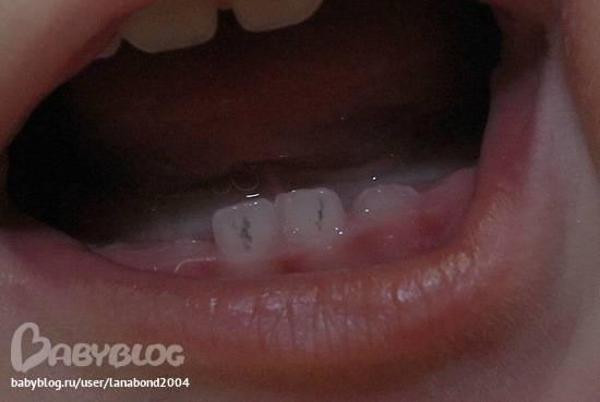 Черный налет на зубах у ребенка: причины и лечение