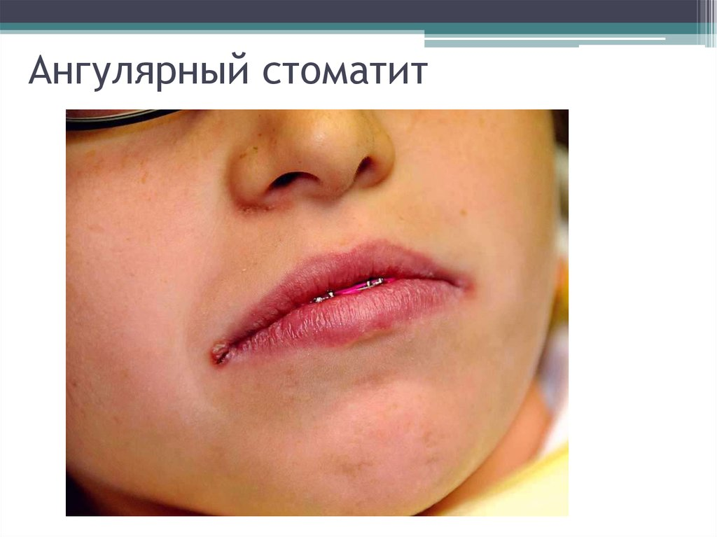 Как избавиться от заед в уголках рта у ребенка?