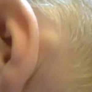 Шишка за ухом: причины появления, разновидности, лечение, фото