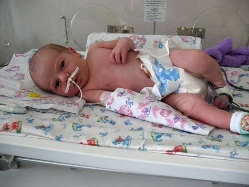 Врожденный стридор у новорожденных симптомы и лечение - до родов