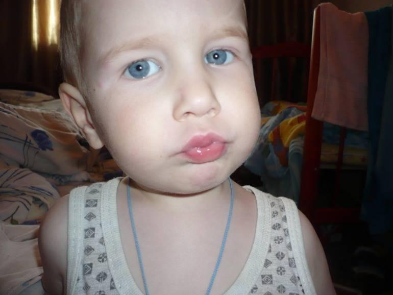 Опухли губы причины. почему у ребенка опухла верхняя губа? что делать при опухлости у ребенка