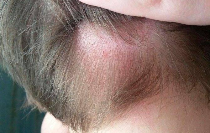Почему чешется кожа головы после обработки от вшей