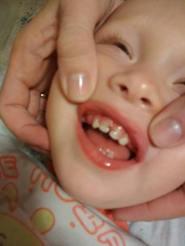 Киста на десне у ребенка: причины, симптомы, методы лечения и профилактики