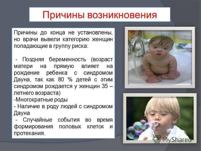 Признаки синдрома дауна у новорожденных: как определить болезнь, симптомы
