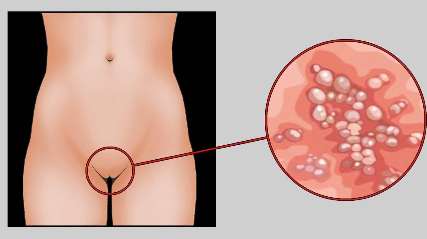 Увеличенные половые губы при беременности. во время беременности опухают, болят или чешутся половые губы: почему это происходит и что делать