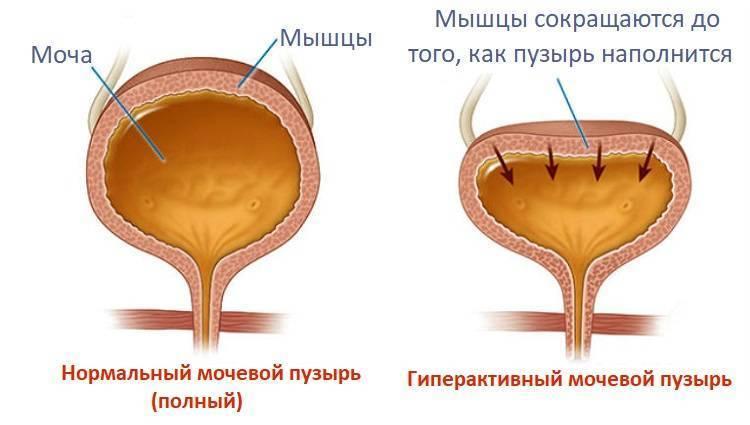 Нейрогенный мочевой пузырь у женщин — деликатная и сложная проблема, с которой можно и нужно бороться